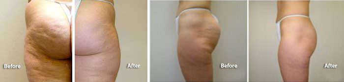 VelaShape III for cellulite