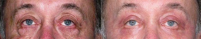 Fractional CO2 for eyes before and after photo