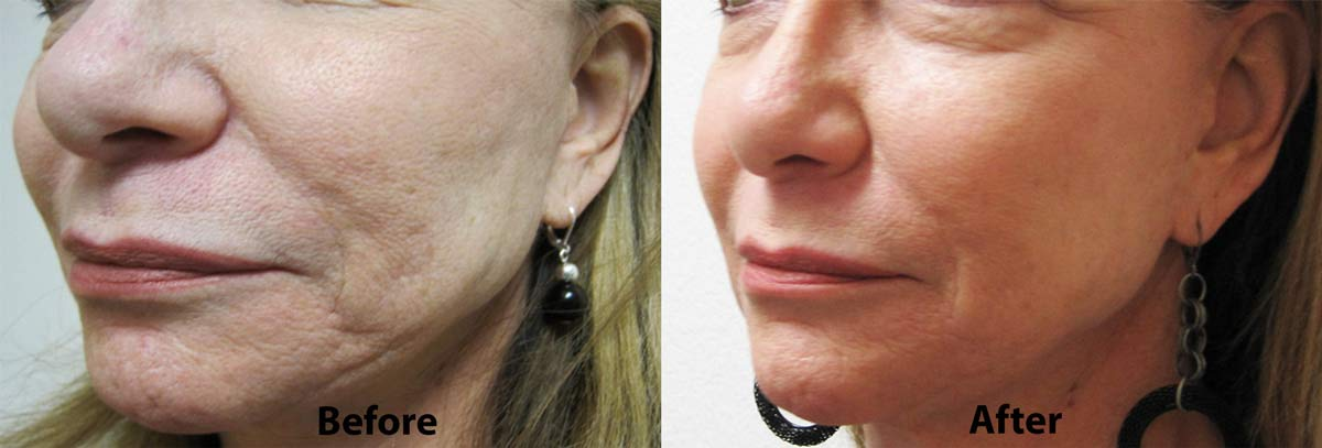 Restylane for Cheeks