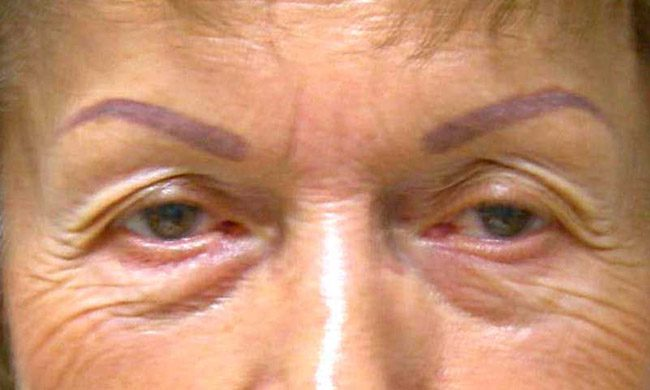Before-Eyelid Surgery - Blepharoplasty