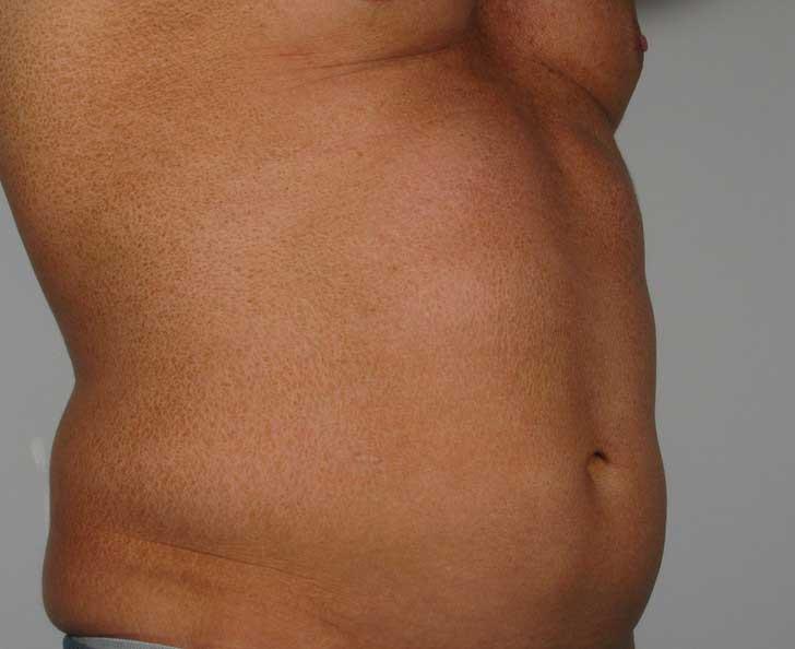 Before-Liposuction