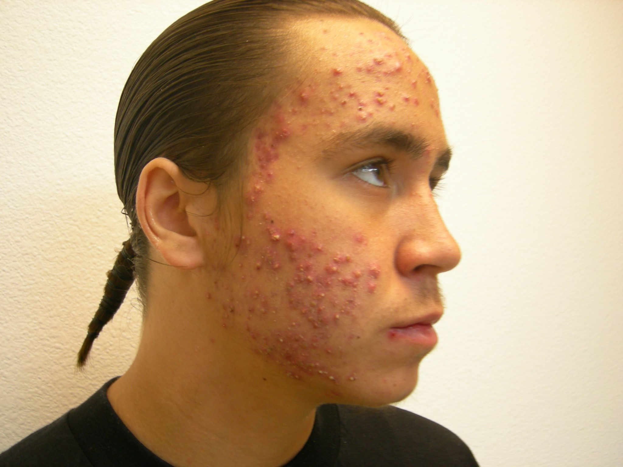 Before-Acne Scars and Scar Treatment