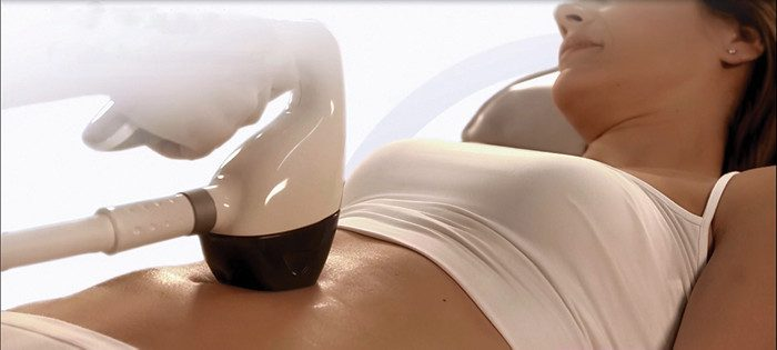 VelaShape III treatment for fat & cellulite reduction
