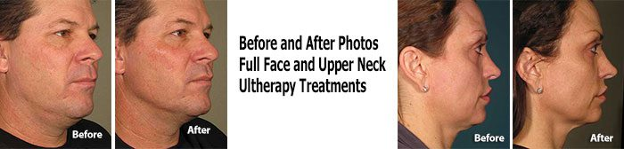 Ultherapy Full Neck