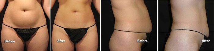 VelaShape III stomach area before & after