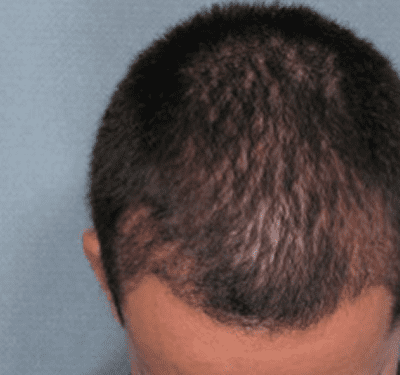 After-Hair Restoration