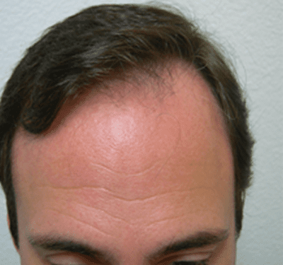 Before-Hair Restoration