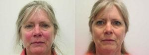 Excel V and Chemical Peel Before and After