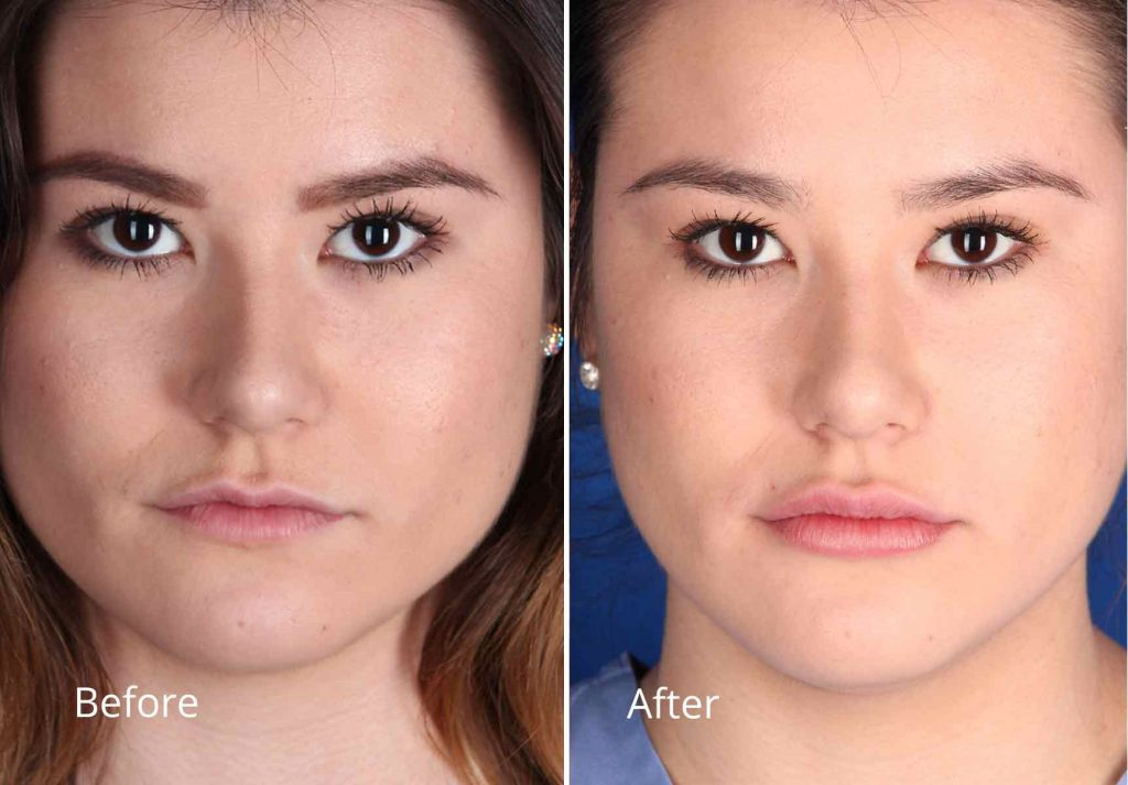 ... Restylane Lyft Patient Before & After Photos   Contour Dermatology