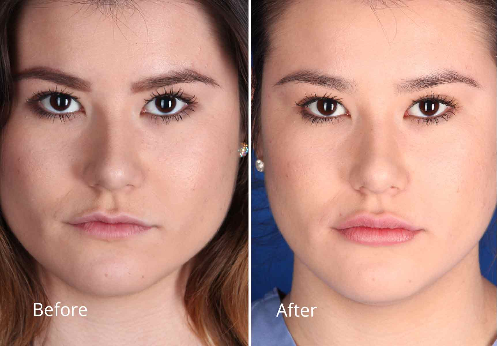 Contour Dermatology Restylane Lyft For The Lips