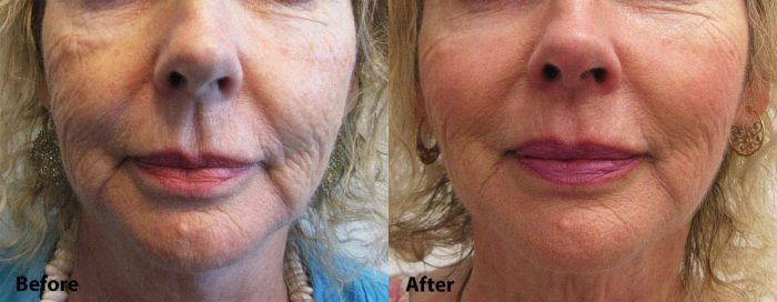 Restylane Lyft for cheeks before and after