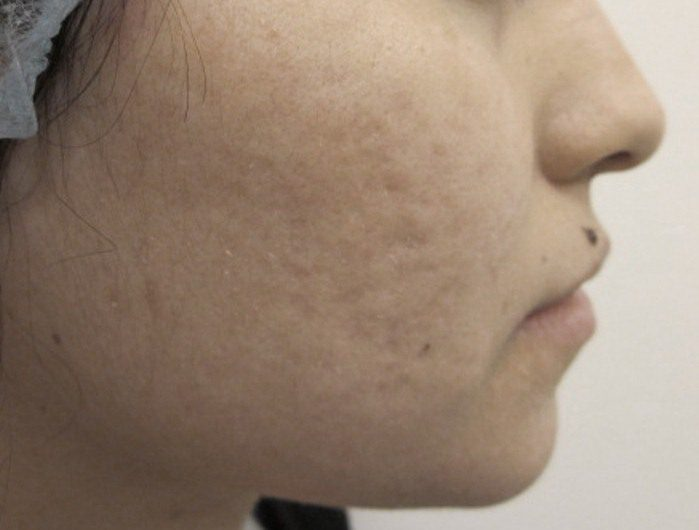 Smoothbeam Laser for Acne Scarring