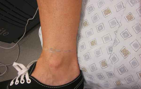 After-Ankle Tattoo Removal