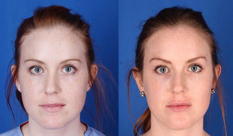 Excel V Laser Photo Gallery Contour Dermatology
