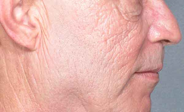 After-Face Wrinkle Removal