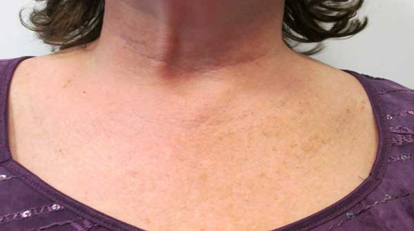 After-Fraxel for Décolletage