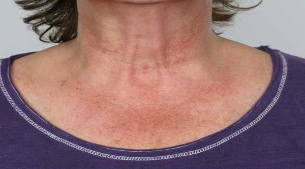 Before-Fraxel for Décolletage