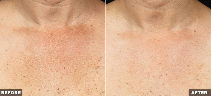 Fraxel for Décolletage