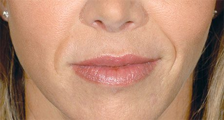 Before-Restylane