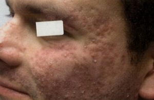 After-Smoothbeam Laser for Acne Scars