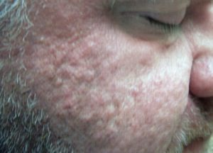 Before-Smoothbeam Laser for Acne Scars