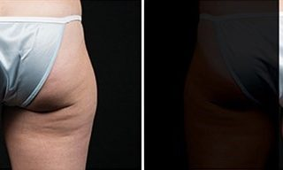 CoolSculpting is available for the thighs.
