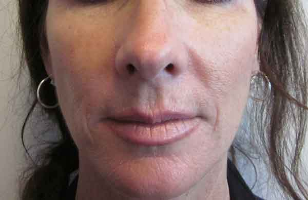 Before-Filler - Restylane