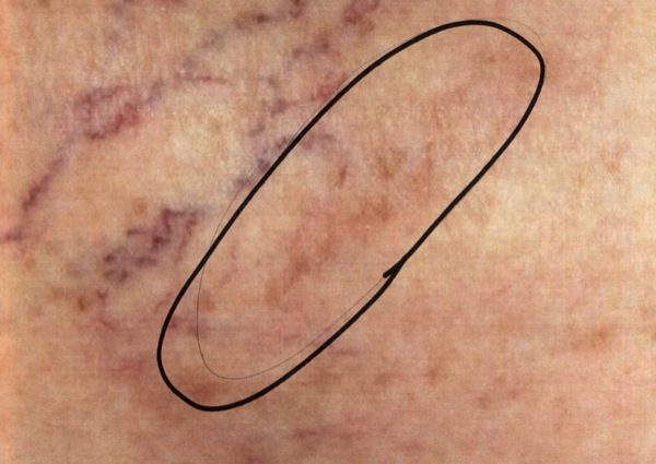 After-Sclerotherapy