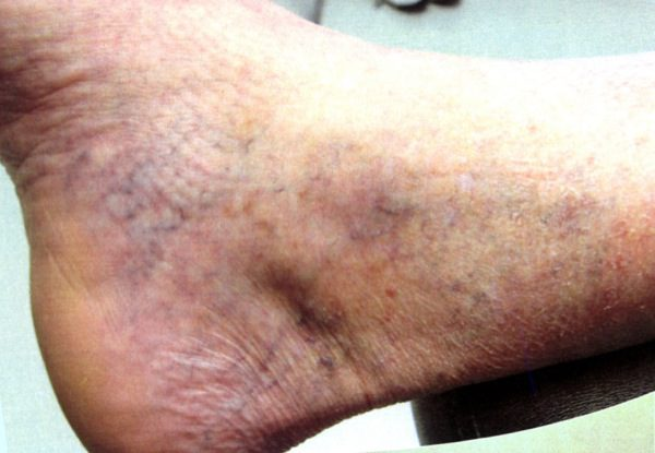 Before-Sclerotherapy