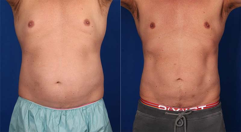 CoolSculpt Upper/Lower Abdomen and Flanks Before and After