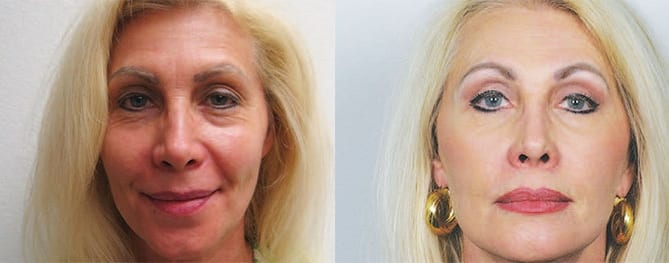 Princess Karen Cantrell, Eyelid Surgery Before and After