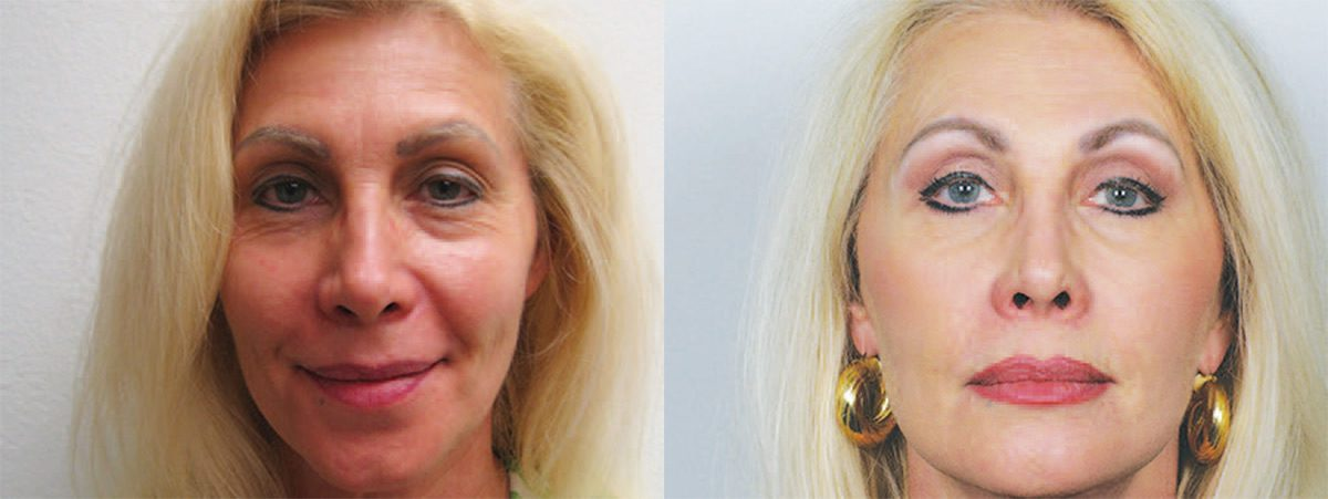 Eyelid Surgery - Correct Your Droopy Eyes | Contour Dermatology