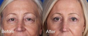 Eyelid Surgery - Blepharoplasty Photo Gallery | Palm ...
