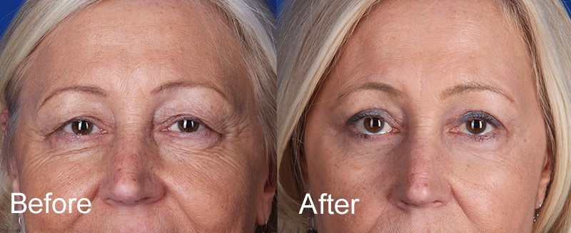 Upper and Lower Eyelid Surgery Before and After