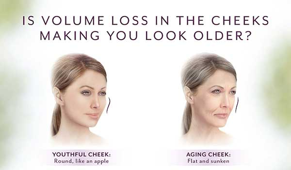 Juvéderm Voluma XC Before and After