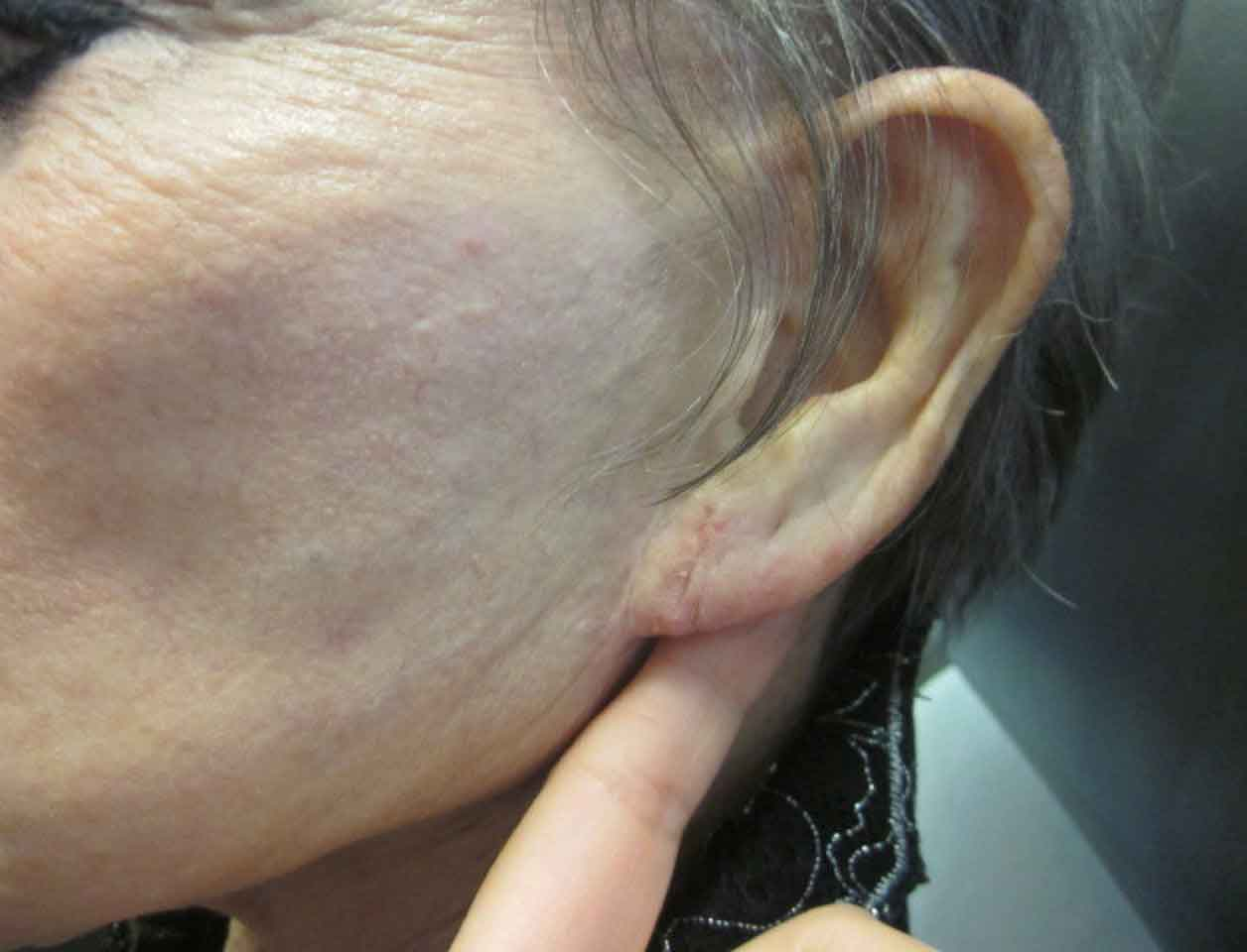 Before-Earlobe Repair