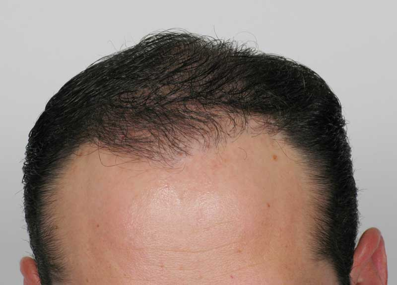 After-Hair Transplant