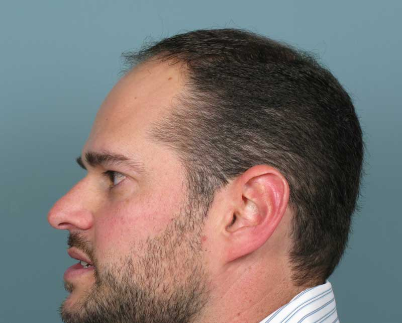 Before-Hair Transplant