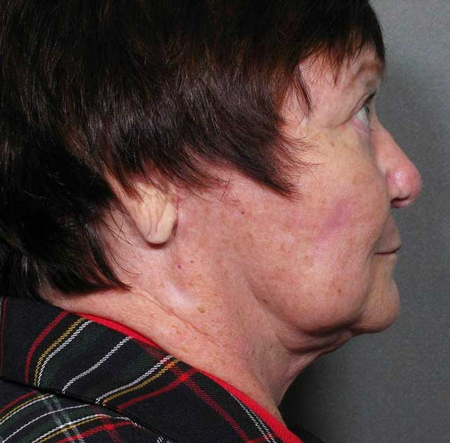 After-Chin Liposuction