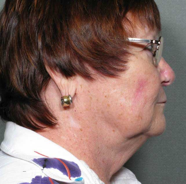 Before-Chin Liposuction