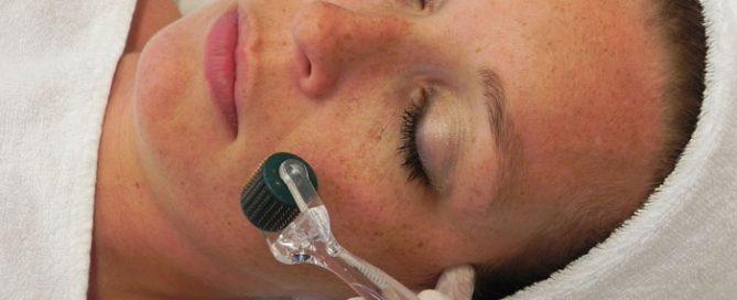Dermaroller contour Dermatology