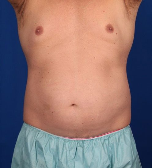 Before-CoolSculpting