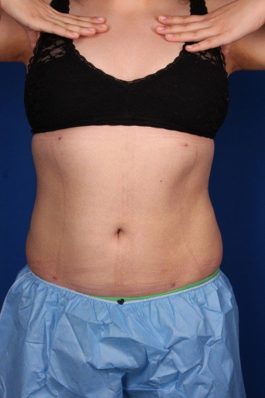 After-Liposuction Abdomen