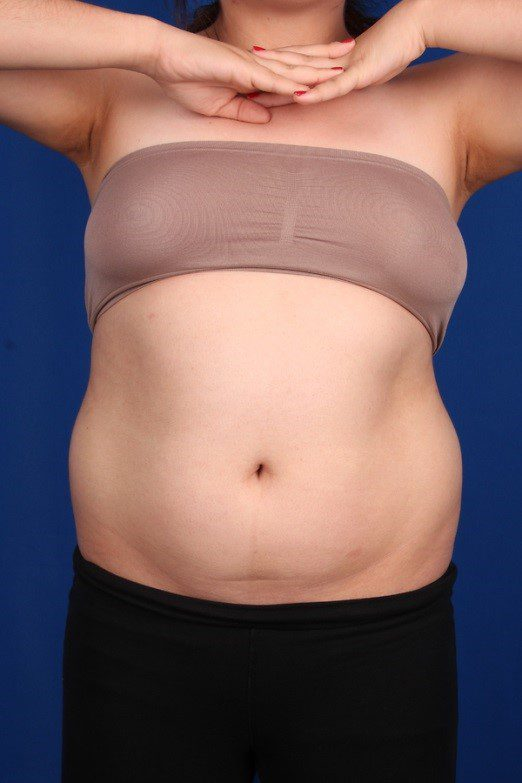 Before-Liposuction Abdomen