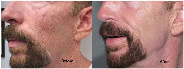 Laser wrinkle reduction for men at Contour Dermatology