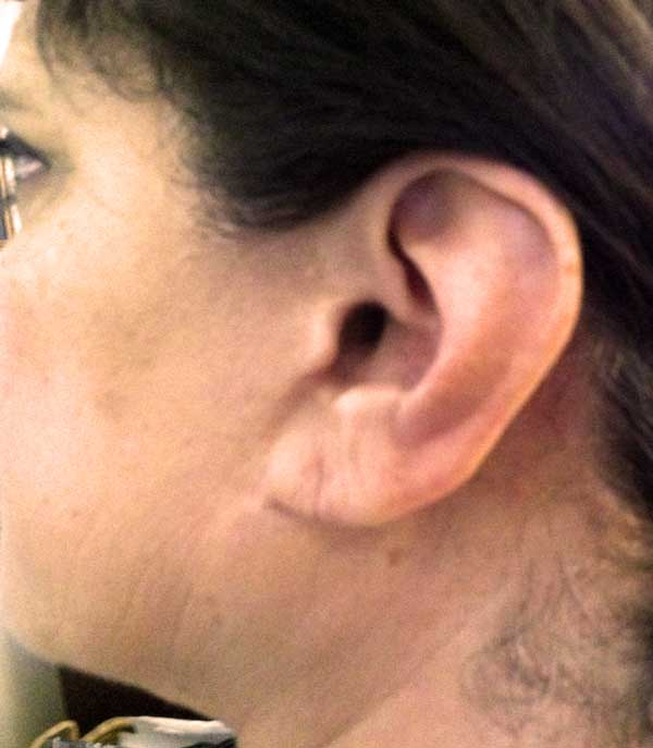 After-Earlobe Repair