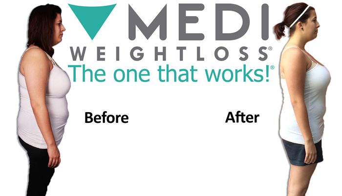 reviews on medi weight loss clinics
