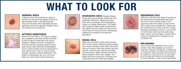 Skin Cancer | Contour Dermatology