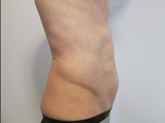 After-VelaShape III