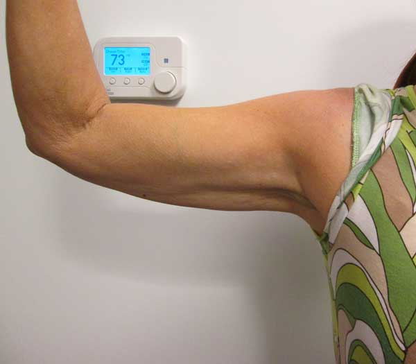 Before-VelaShape III for Arms